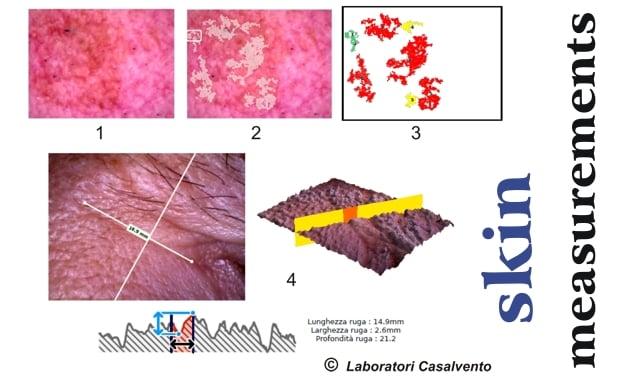 macchie di iperpigmentazione rughe cutanee
